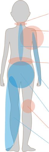 後遺障害 人体図
